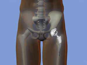 Операция по протезированию тазобедренного сустава цена фторхинолоны разрушают суставы