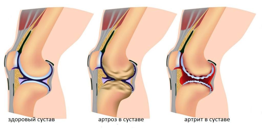 Болезни костей и суставов остеопороз, остеомиелит, артрит, артроз, ревматизм, шпоры дистальный лучезапястный сустав