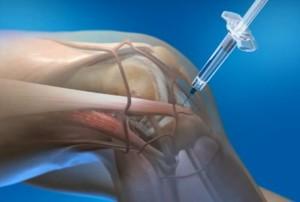 хондропротекторы при артрозе коленного сустава