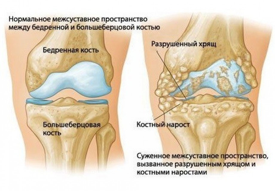 Артроз коленного сустава лечение в домашних условиях