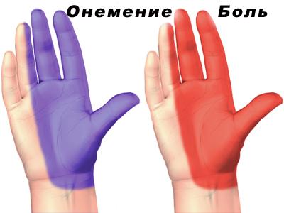 причины боли в суставе большого пальца руки