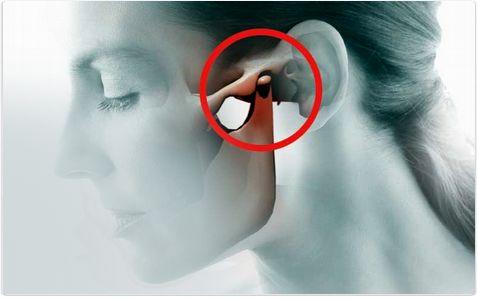 Артрит челюстного сустава лечение форум
