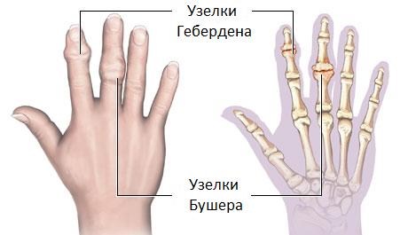 Почему болят суставы пальцев рук причины лечение диета
