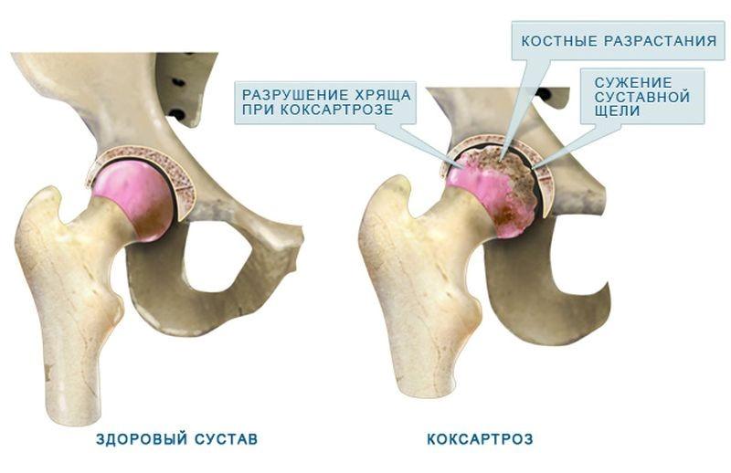 Артроз тазобедренного сустава 2 степени причины лечение рак суставов
