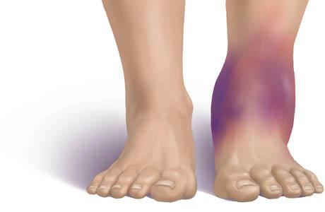 Хронический синовит голеностопного сустава лечение крем для тела в области суставов огаркова 100 мл