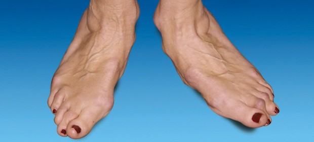 Деформация стопы при 3 степени артроза голеностопного сустава