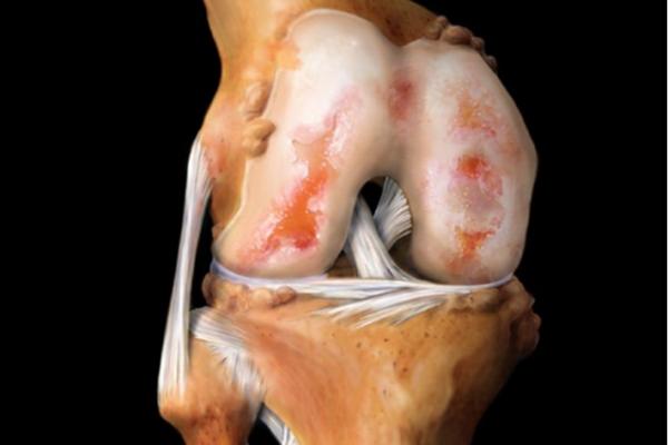 Болит колено при артрозе