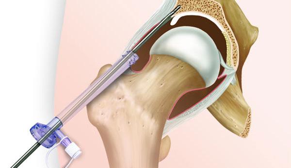 Как сделать укол в сустав тазобедренный сустав