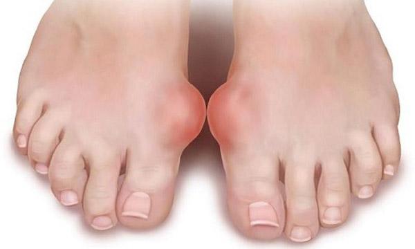Перелом фаланги на большом пальце ноги