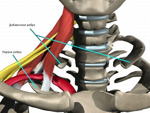 Добавочное шейное ребро