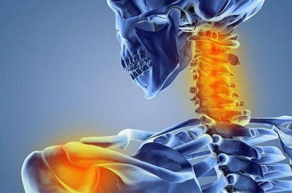 Боли в плече и шее