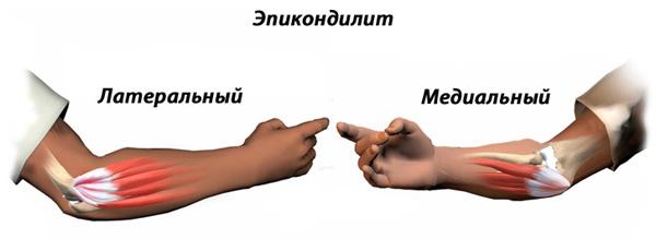 Лфк при остеоартрозе кисти рук