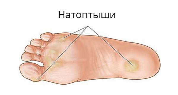 Боль в косточке большого пальца на ноге