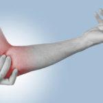 Когда бурсит локтевого сустава — повод обратиться за лечением