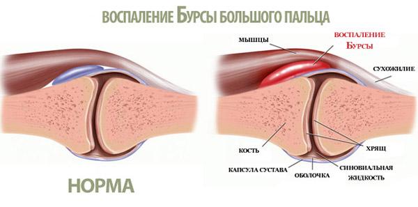 Бурсит стопы - пораженный сустав