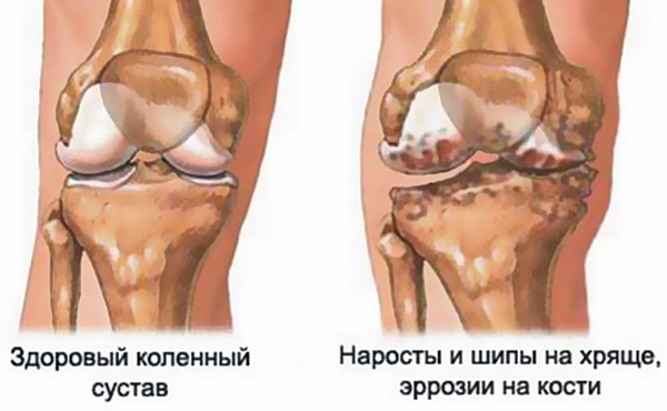 Стадии и симптомы гонартроза