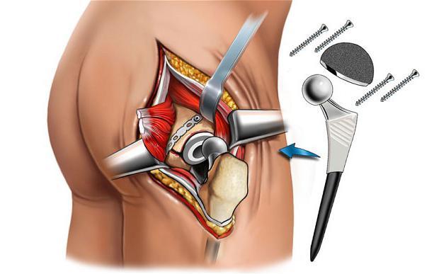 Работа тазобедренного сустава квота на операцию по замене тазобедренного сустава в 2014 году