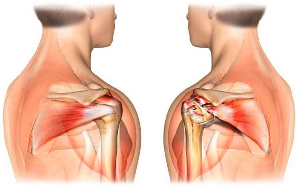 Разрыв мышц плеча