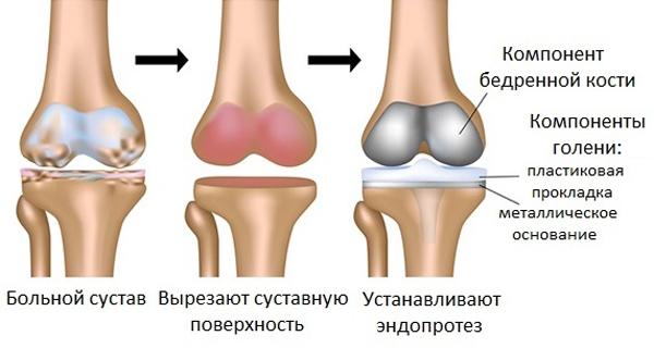 Отзывы об оперативном лечение артроза коленных суставов препараты при заболевание тазобедренных суставов