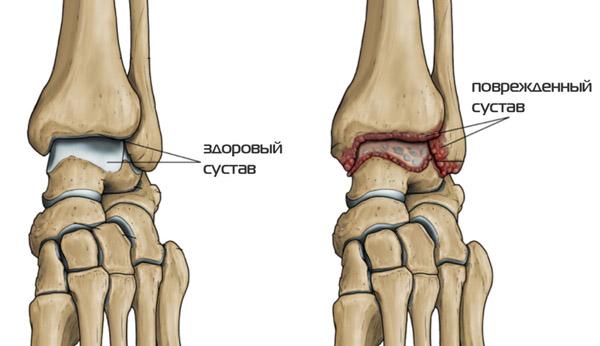 Повреждения суставов при остеоартрозе голеностопного сустава