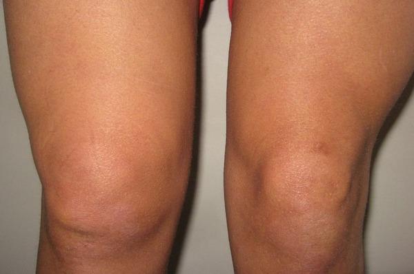 Отечность и припухлость колена при растяжении