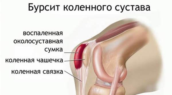 Гнойный бурсит коленного сустава какие витамины с кальцием для суставов