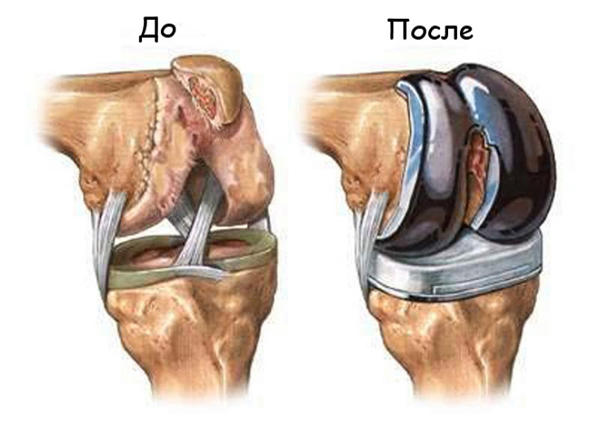 Протезы для коленных суставов боли в суставах по утрам
