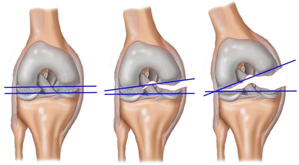 Порвана передняя крестообразная связка коленного сустава народная медицина суставы скачать