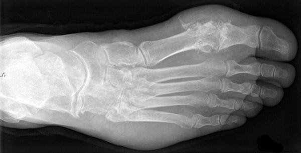 Рентген голеностопного сустава при артрозе