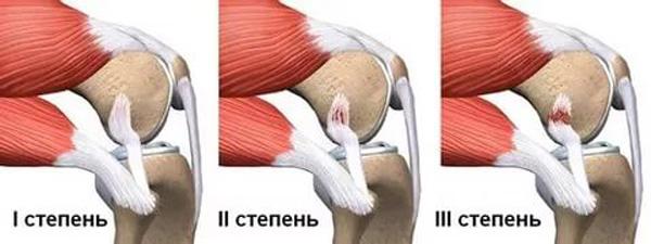 три степени тяжести растяжения коленного сустава