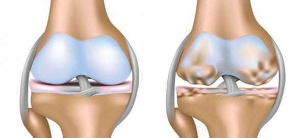 Ай болит коленных суставов боли в суставах при эндокрин нарушени