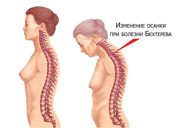 Нормальная спина и спина при сколиозе