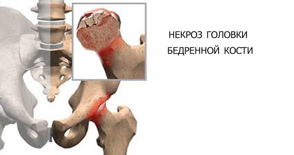 Никроз тазобедреного сустава поставили протез последствия после операции холод суставы пальцев