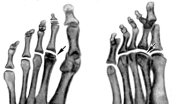 Разрушение кости