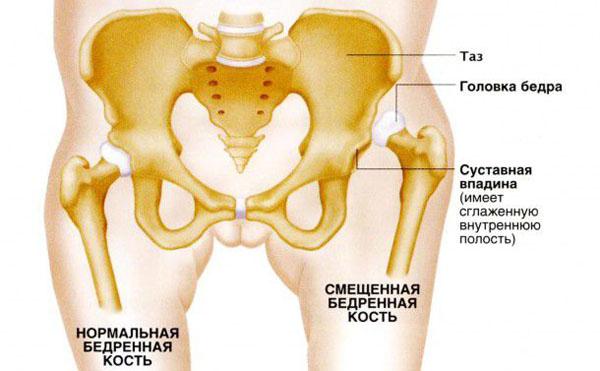 Дисплазия тазобедренных суставов физиотерапия бедуинская мазь для суставов