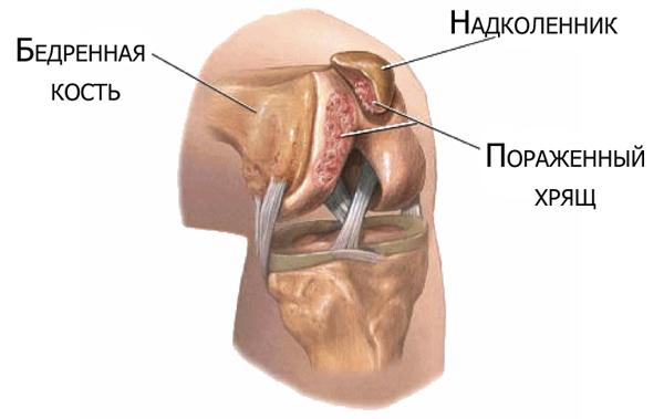 Хондромаляция суставного хряща надколенника 3 степени щелкают суставы, профилактика