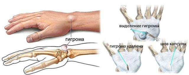 Оперативное лечение гигромы