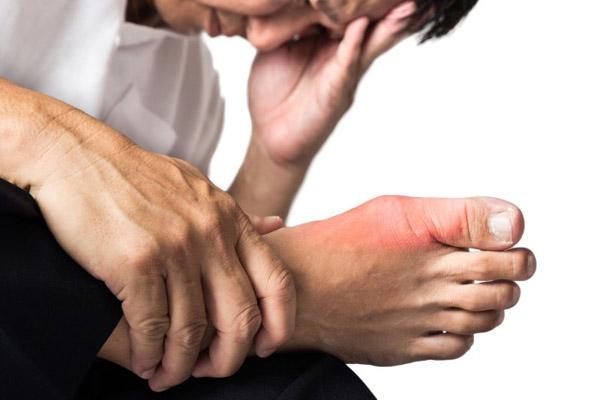 коленный сустав строение костей
