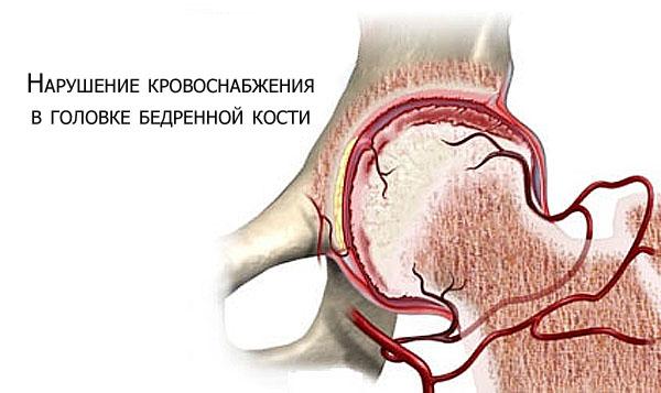 Нарушение кровоснабжения в суставе