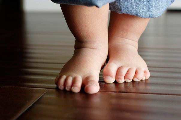 Дисплазия тазобедренного сустава у детей признаки