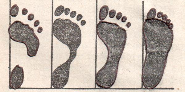 Перелом ноги у детей до года