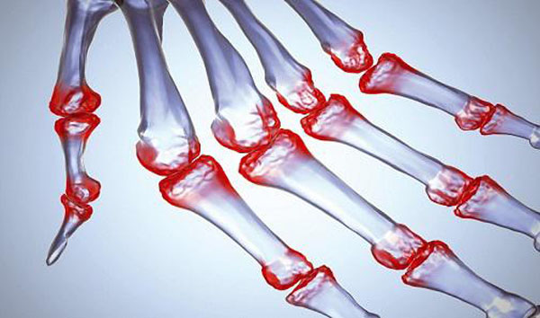 Лечение переломов фаланг рук