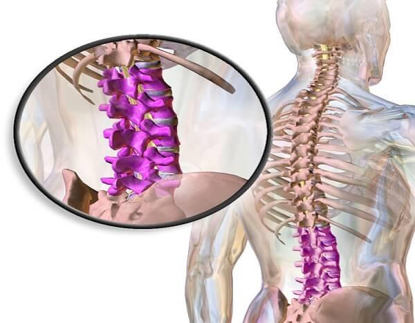 Заболевания нижнего отдела позвоночника