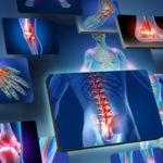 Что такое полиартрит?