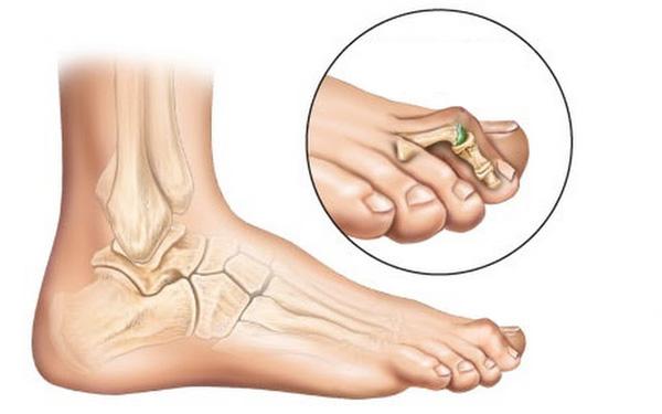 Болят косточки на пальцах
