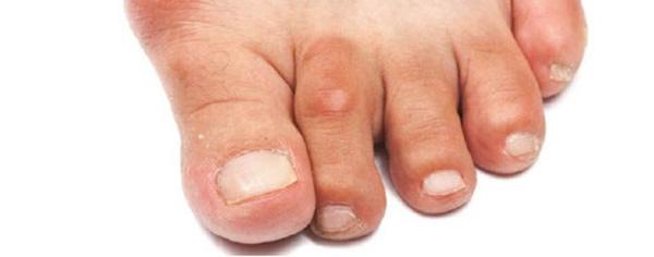 Наросты на суставах пальцах ног лечение после эндопротезирования суставов