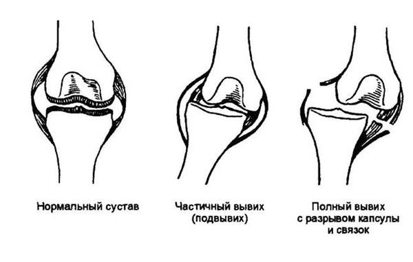 Подвывих коленного сустава