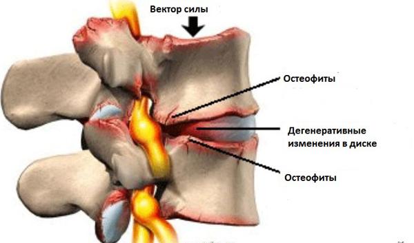 Функциональная нестабильность шоп признаки остеохондроза с-5 с-6 с6-с7