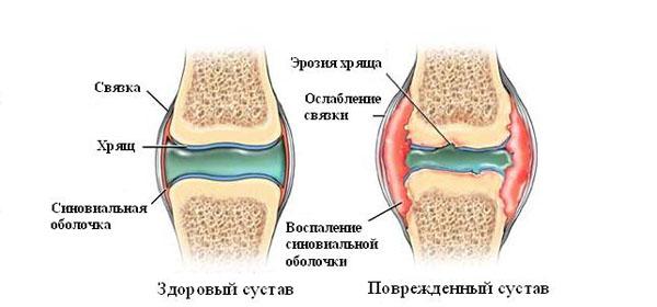 Артрит суставов - воспаление