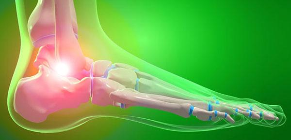 О чем говорят симптомы артроза стопы и как его лечить